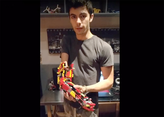 Prosthetic lego arm